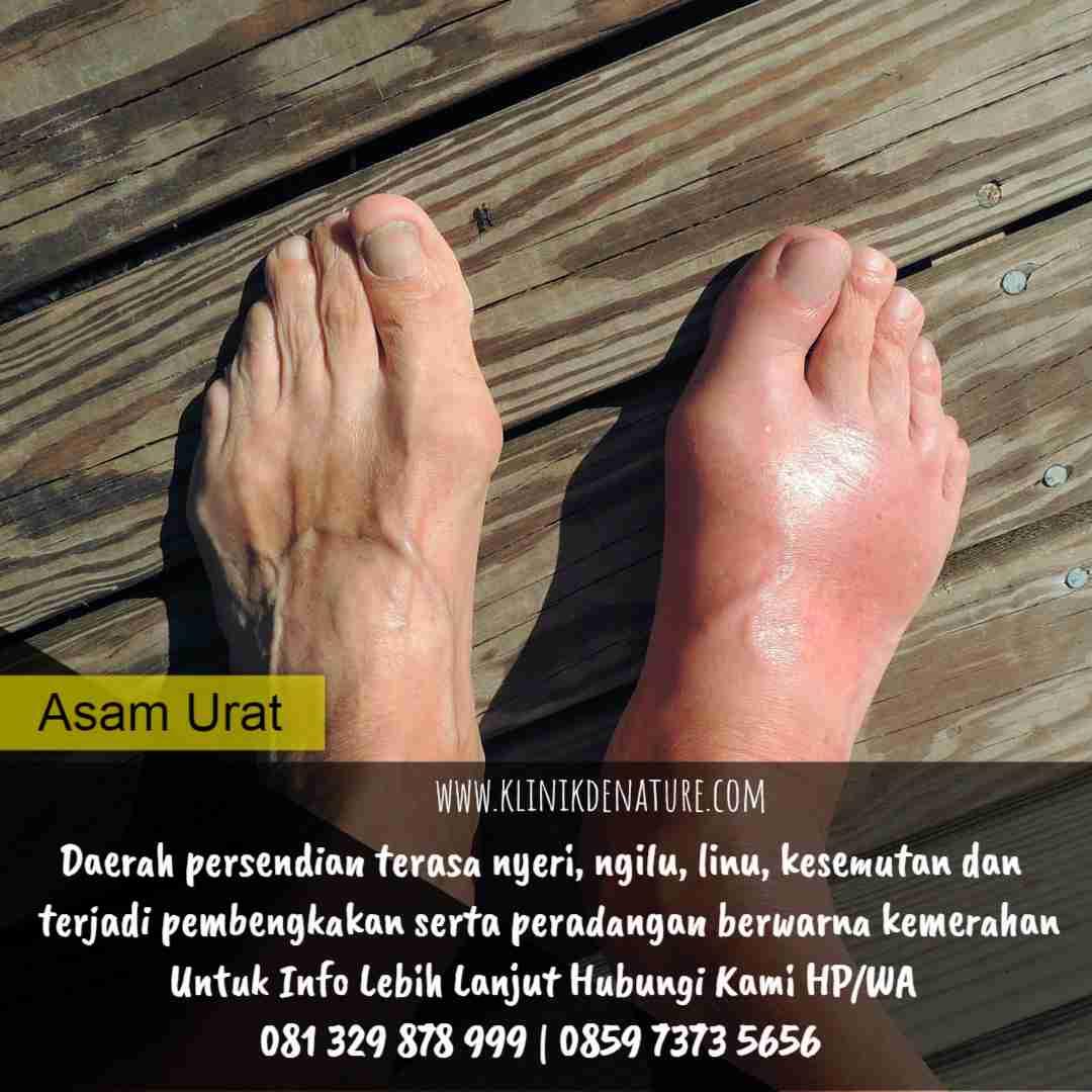 gejala dan penyakit asam urat
