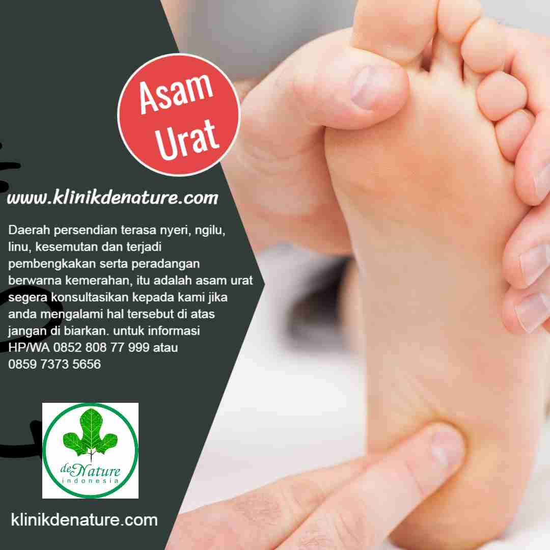 jamu herbal asam urat