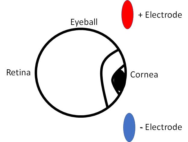 Eogretina